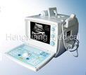 Ultrasonic Diagnostic Equipment (3000D1)